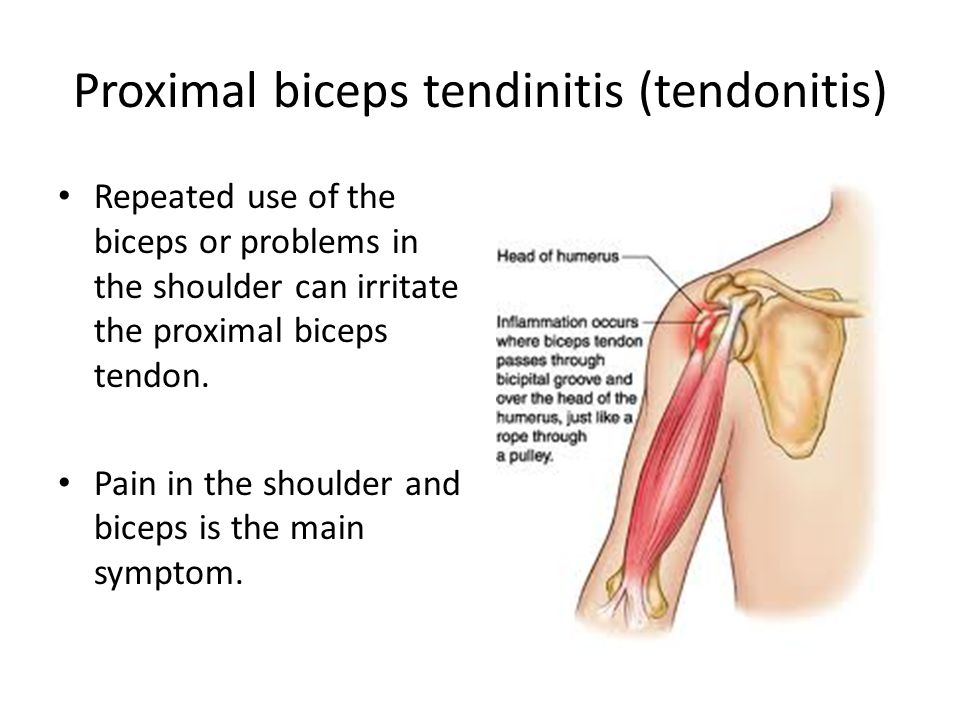 Shoulder Pain And Biceps Tendinitis Osteopathy Acupuncture