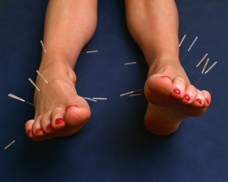 Acupuncture began before 2500 BC in China and is now used all over the world to treat disease and pain, to improve general health, and even as an anesthetic.  Metal needles are applied to certain points on the body, and the overall purpose of the treatment is to bring the  (female principle) and  (male principle) back into balance with one another.